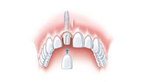 implantologie_1
