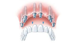 implantologie_2